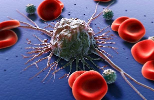 Это не вызывает рак: главные мифы об онкологии