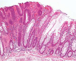 Новый метод визуализации рака позволит избежать операций