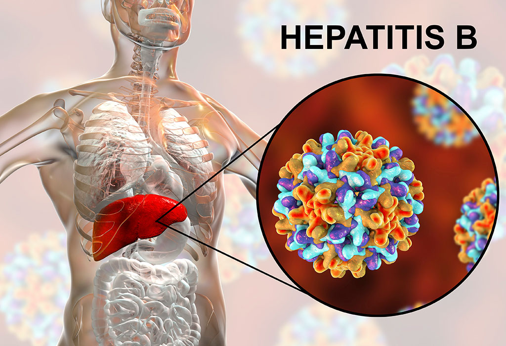 Гепатит B — заболевание, потенциально опасное для жизни