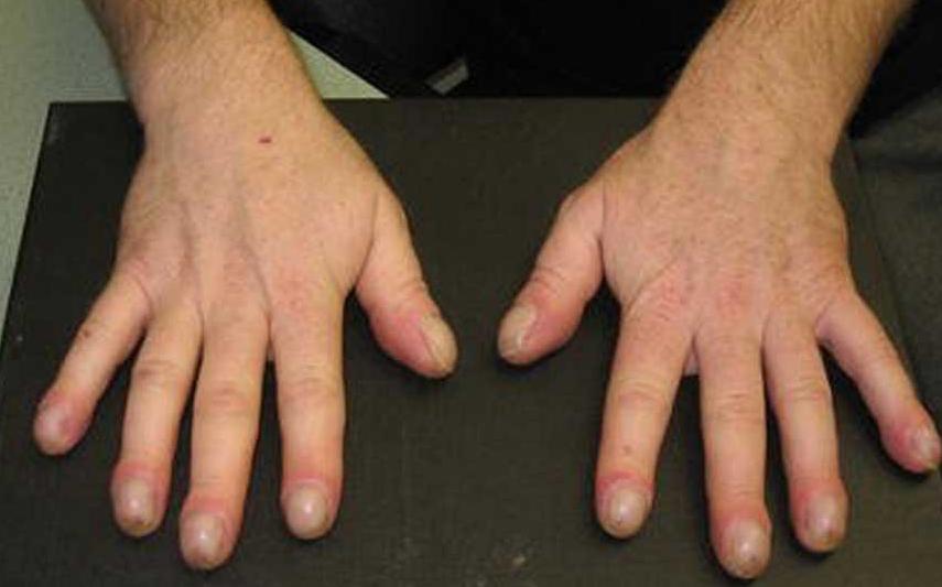 Изменение формы пальцев рук может быть предвестником рака легких