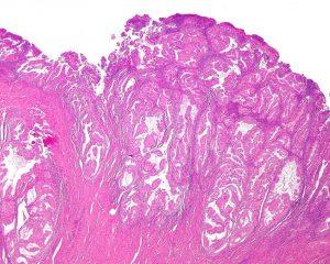 Ученые нашли новый путь для предотвращения рецидива рака
