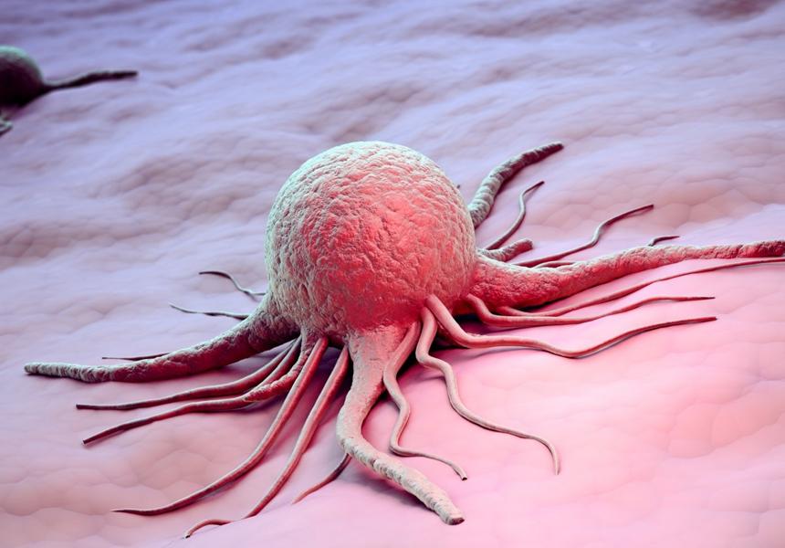 Российские специалисты поняли, как повысить эффективность терапии рака