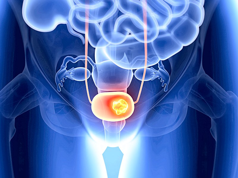 Рак мочевого пузыря: все самое главное
