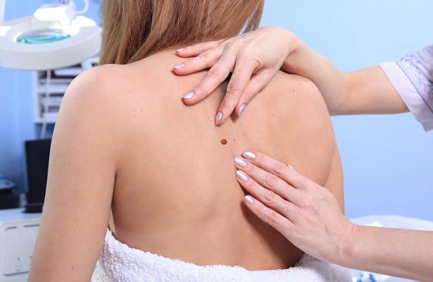Дерматолог назвала категории россиян с высоким риском рака кожи