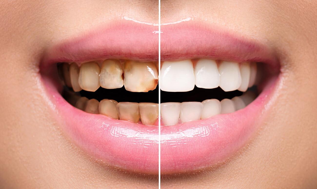 Что такое художественная реставрация зубов