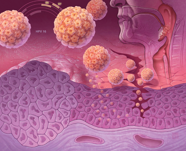 Названы визуальные симптомы рака на ранней стадии