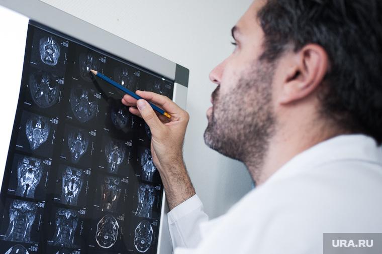 Онкологи рассказали можно ли вылечить рак последней стадии