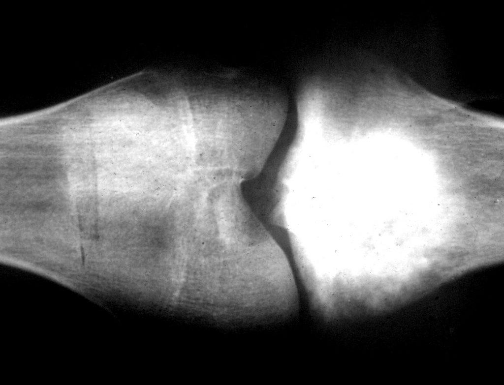 Саркома кости – один из наиболее древних видов рака