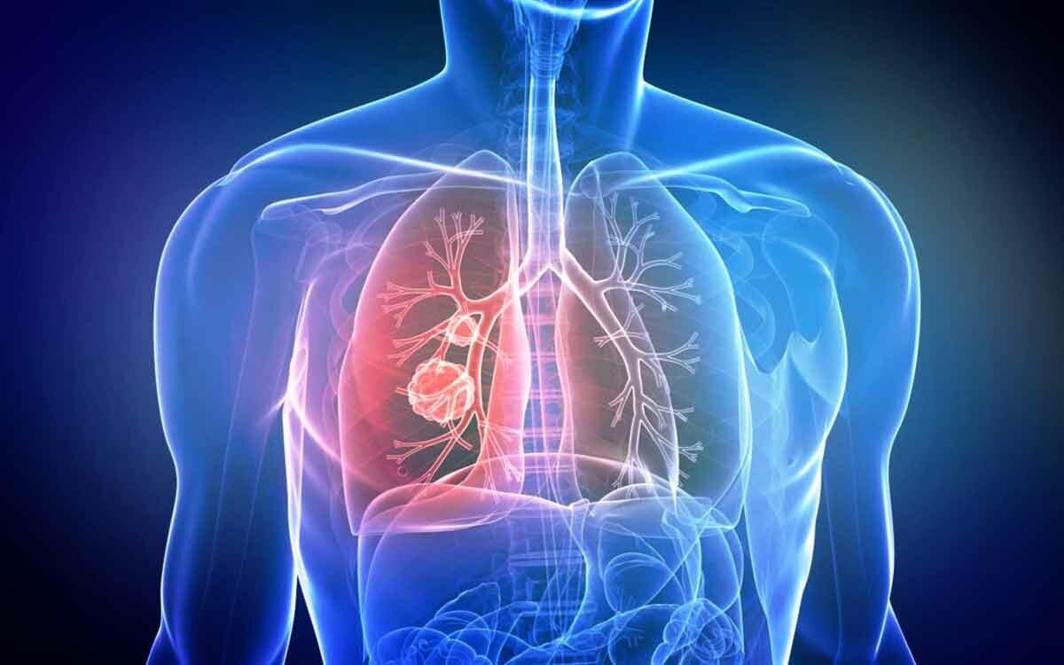 Британский врач назвала необычные и малоизвестные признаки рака легких