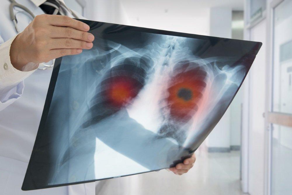 Стоит ли бояться рака легких тем, кто никогда не курил