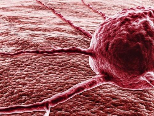 7 признаков, которые могут говорить о начавшейся лейкемии