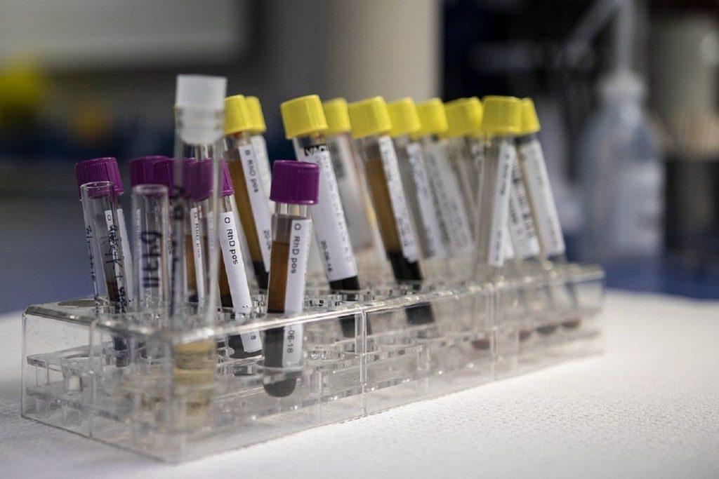 Новый простой тест быстро диагностирует рак легких