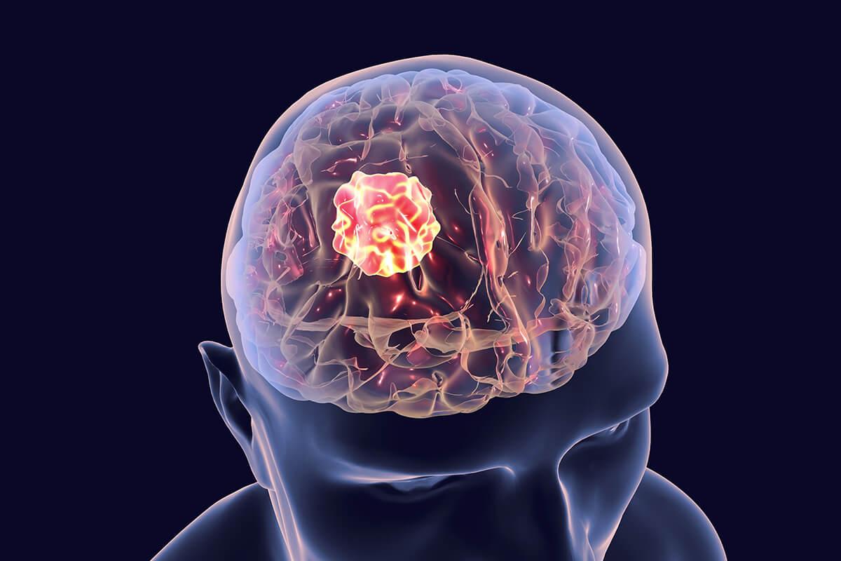 Найти опухоль головного мозга можно по моче
