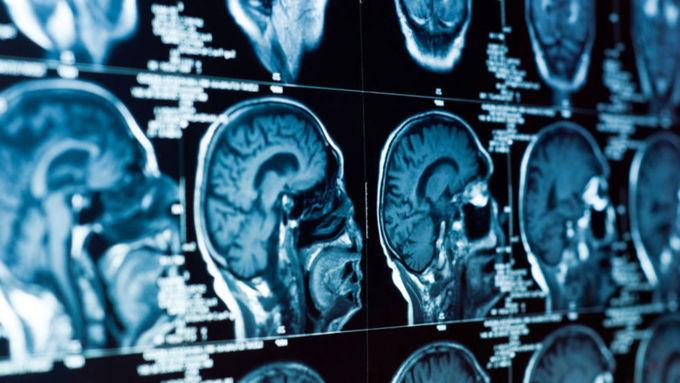 7 важных симптомов, по которым можно определить рак мозга