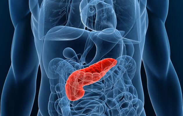 Иногда под видом банального несварения желудка скрывается рак поджелудочной