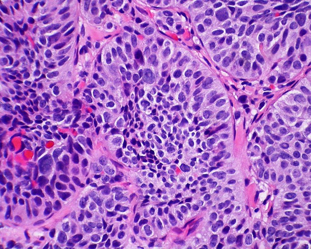 Популярный анестетик может способствовать метастазированию опухоли