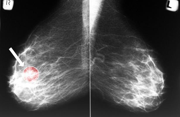 95% раковых клеток способна уничтожить найденная молекула