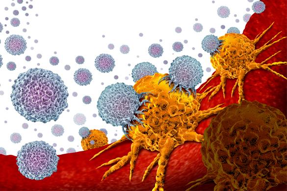 Рак кишечника имеет способность «скрываться» от иммунотерапии