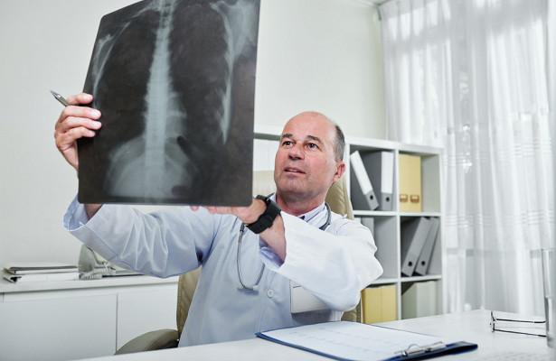 Перечислены пять неочевидных симптомов рака легких