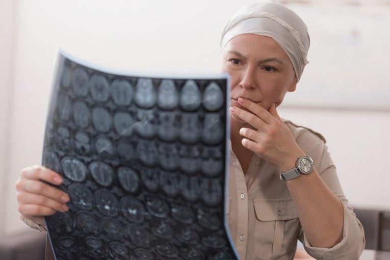 От первого симптома до метастаз: сколько времени развивается рак