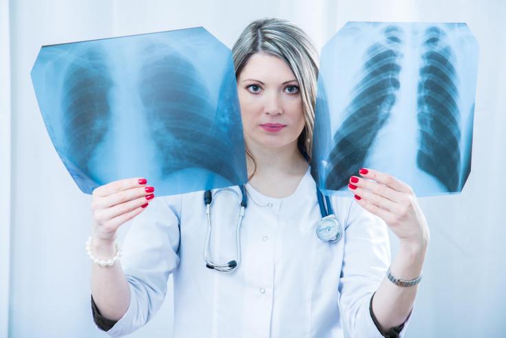 3 способа, которые помогут снизить риск развития рака легких