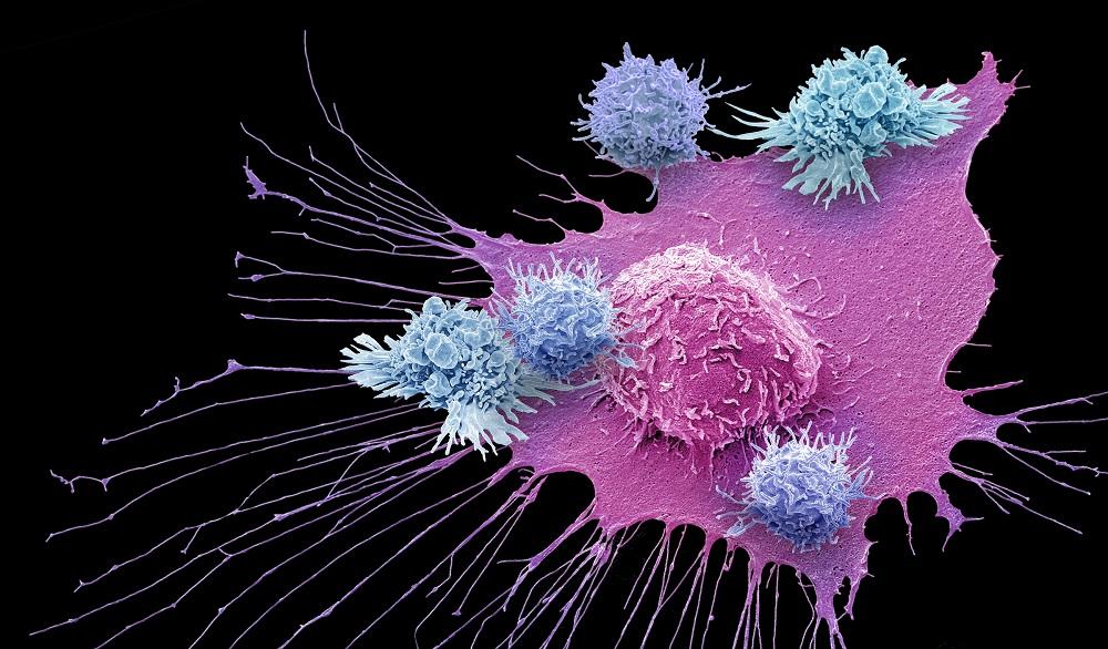 Изобретен новый способ подавить иммунитет рака