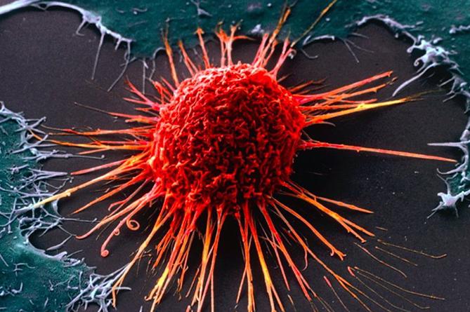 Названы самые действенные способы профилактики рака