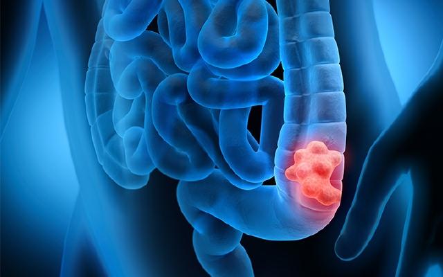Колоректальный рак: 6 «красных флажков» и 7 опасных мифов об этой болезни