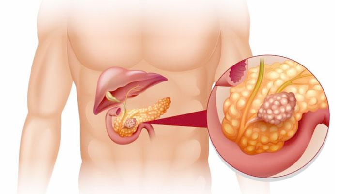 3 начальных симптома рака поджелудочной железы
