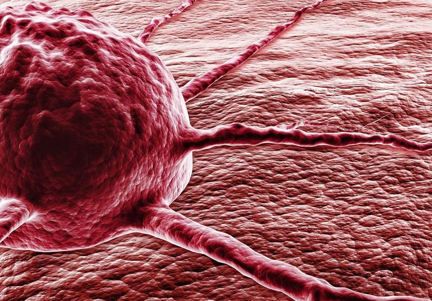 Ученые считают, что человек и онкологические заболевания неразрывно связаны