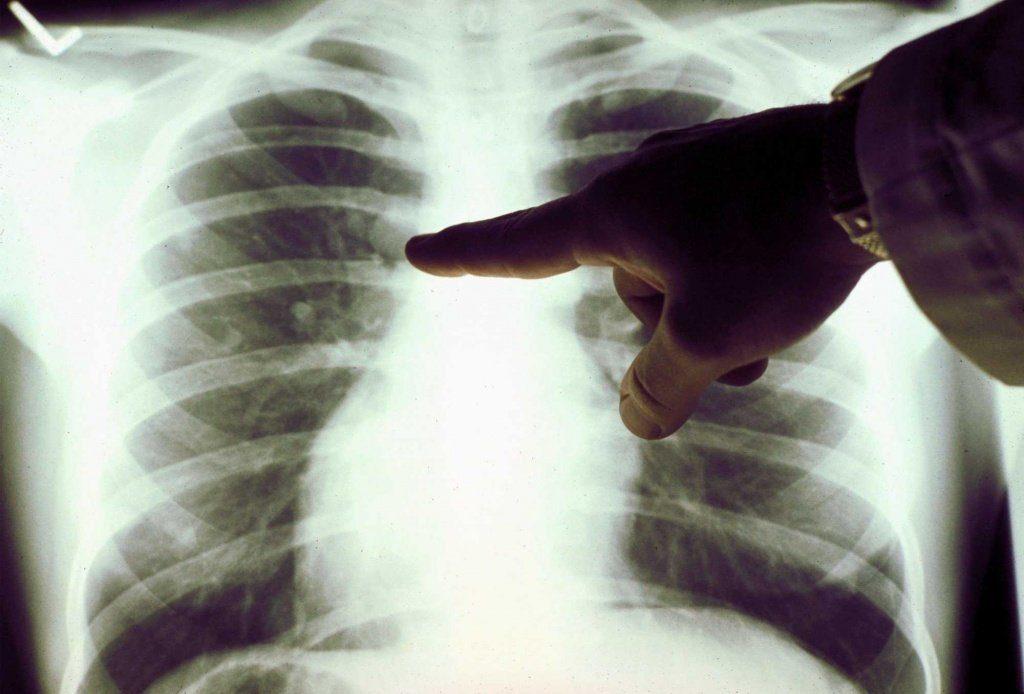 «Невидимые» симптомы рака лёгких, знание которых может спасти вам жизнь!